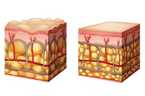 Leanea DERMA най-добрата хранителна добавка за целулит - антицелулитни продукти